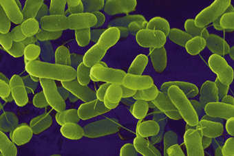 NZ: Fonterra recalls Anchor, Pams on E.Coli fears